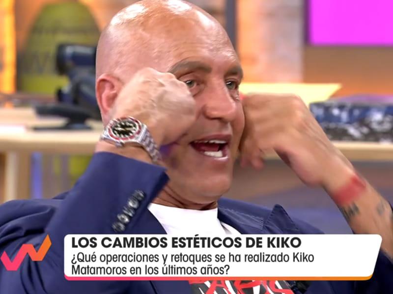 <span>ORELLES RETALLADES</span> Kiko Matamoros reconeix els seus 11 retocs estètics per valor de 40.000 euros